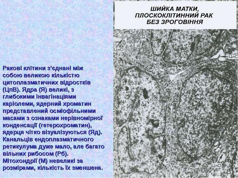 Ракові клітини з'єднані між собою великою кількістю цитоплазматичних відростк...