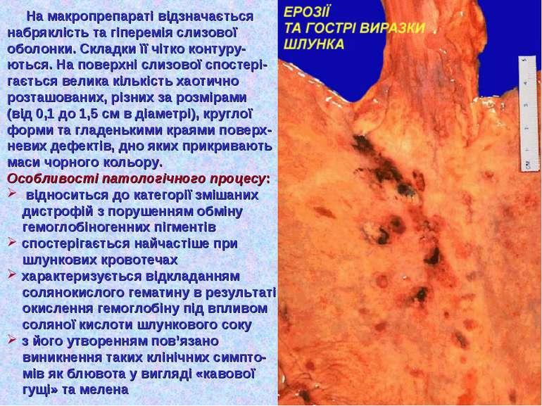 На макропрепараті відзначається набряклість та гіперемія слизової оболонки. С...