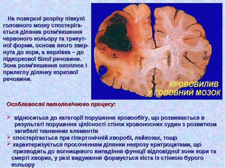 На поверхні розрізу півкулі головного мозку спостеріга- ється ділянка розм'як...