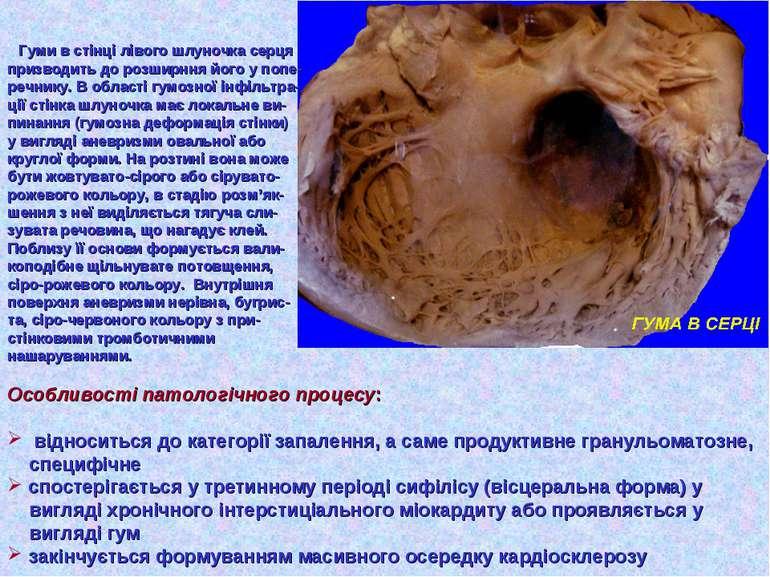 Гуми в стінці лівого шлуночка серця призводить до розширння його у попе- речн...