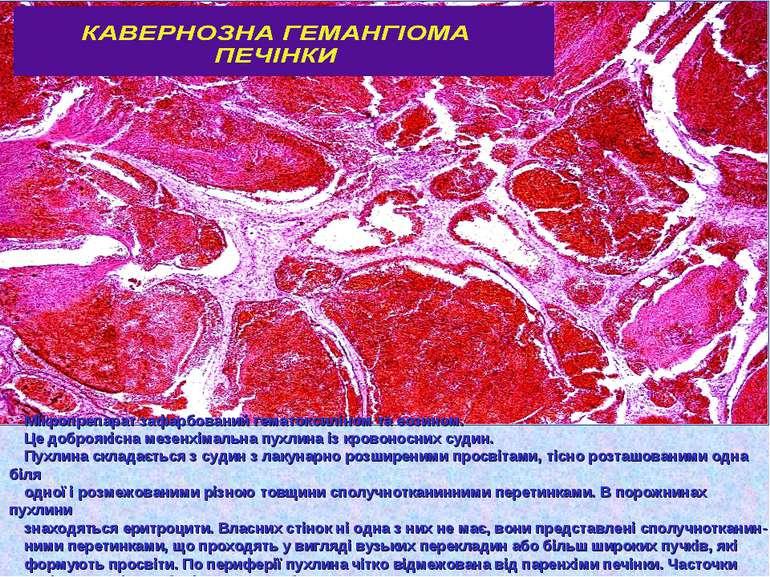 Мікропрепарат зафарбований гематоксиліном та еозином. Це доброякісна мезенхім...