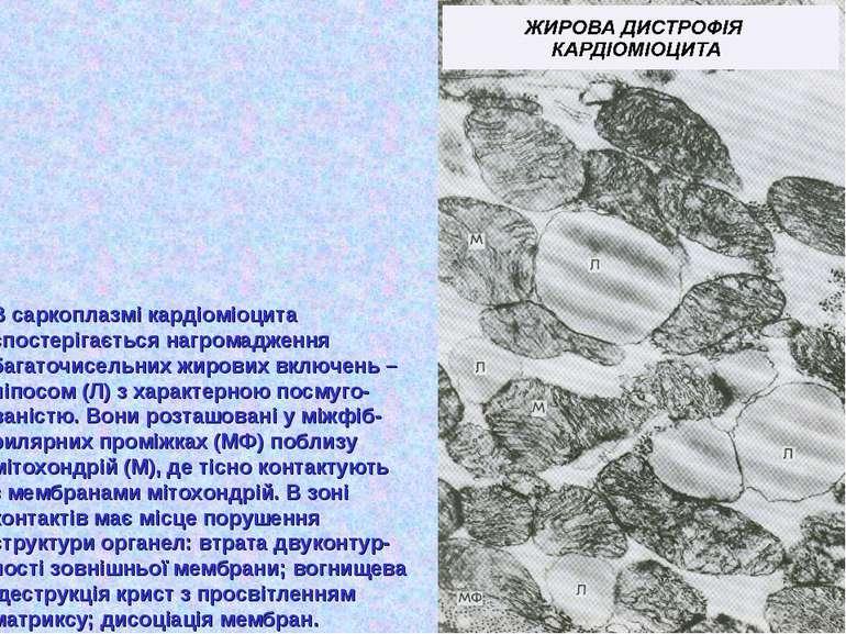 В саркоплазмі кардіоміоцита спостерігається нагромадження багаточисельних жир...