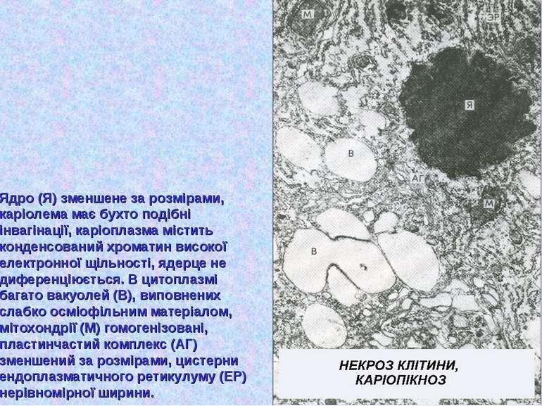 Ядро (Я) зменшене за розмірами, каріолема має бухто подібні інвагінації, карі...