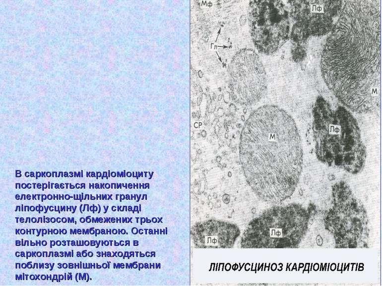 В саркоплазмі кардіоміоциту постерігається накопичення електронно-щільних гра...