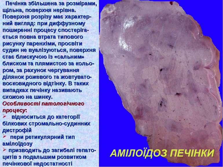 Печінка збільшена за розмірами, щільна, поверхня нерівна. Поверхня розрізу ма...