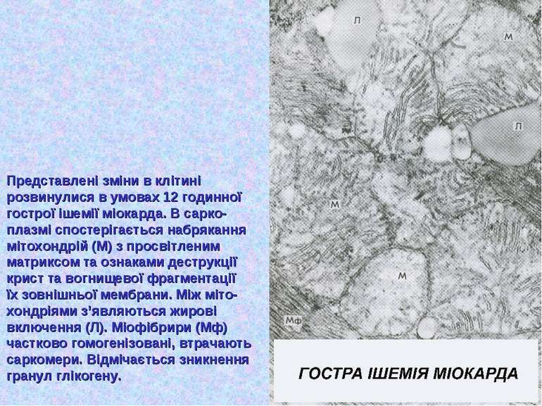 Представлені зміни в клітині розвинулися в умовах 12 годинної гострої ішемії ...