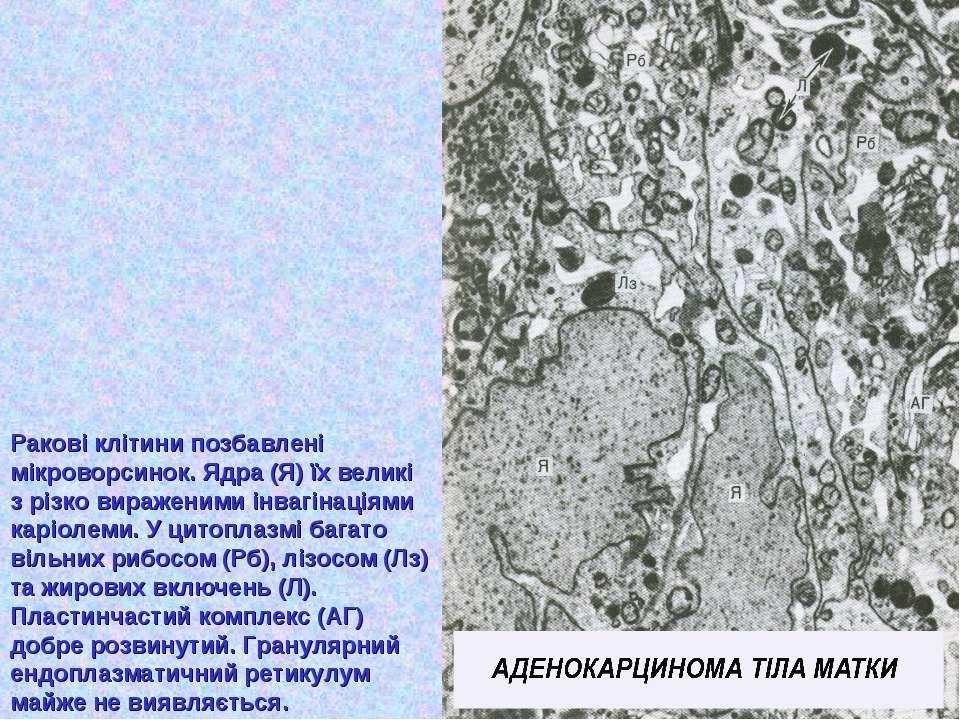 Ракові клітини позбавлені мікроворсинок. Ядра (Я) їх великі з різко вираженим...