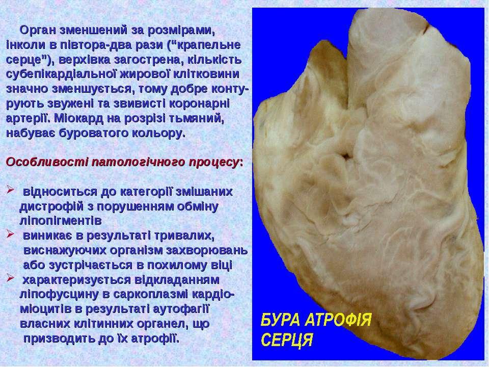"""Орган зменшений за розмірами, інколи в півтора-два рази (""""крапельне серце""""), ..."""