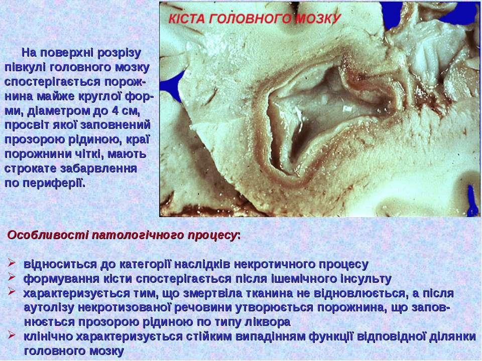 На поверхні розрізу півкулі головного мозку спостерігається порож- нина майже...