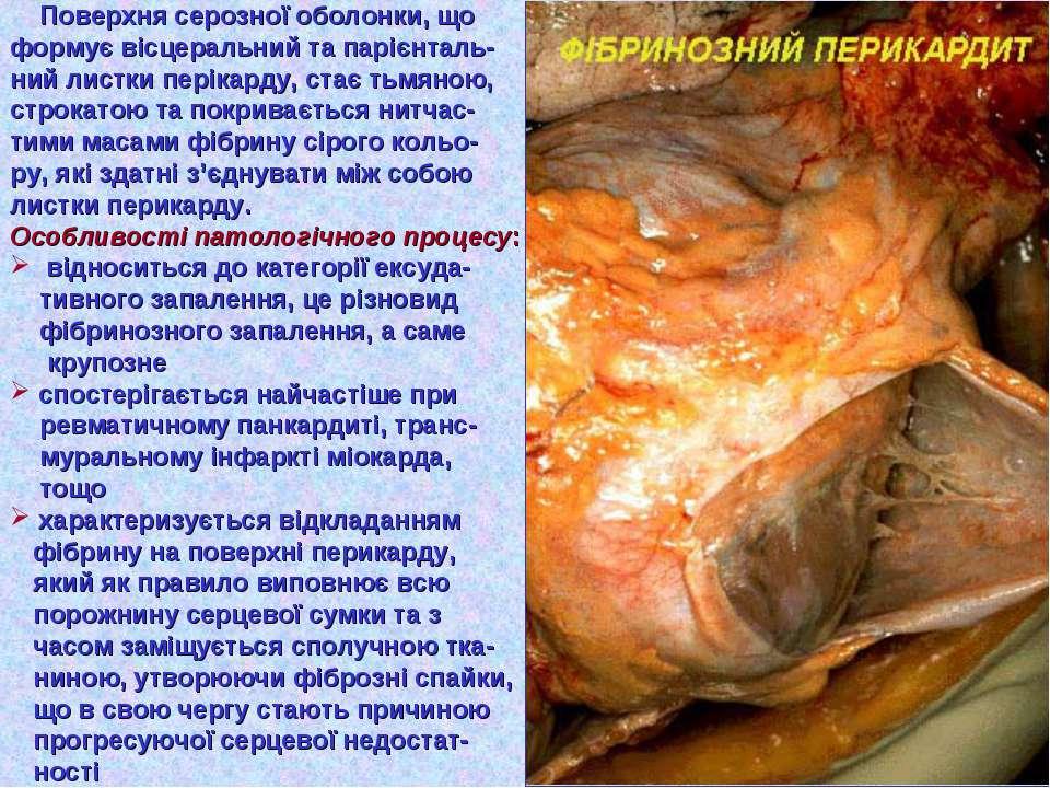 Поверхня серозної оболонки, що формує вісцеральний та парієнталь- ний листки ...