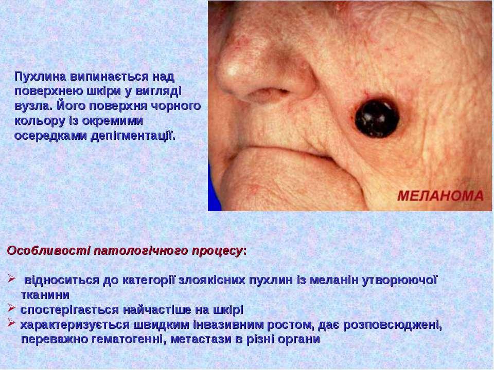 Пухлина випинається над поверхнею шкіри у вигляді вузла. Його поверхня чорног...
