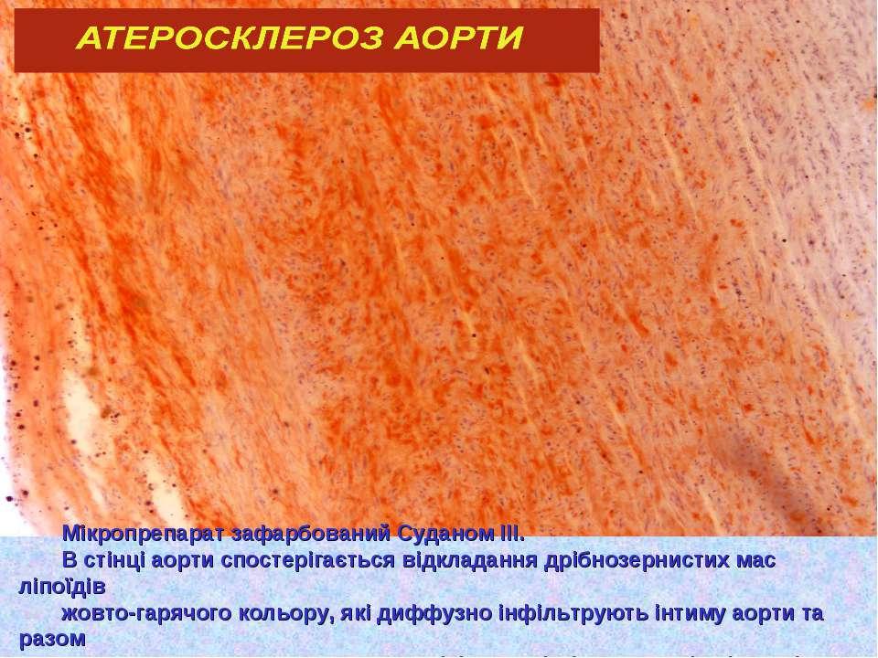 Мікропрепарат зафарбований Суданом ІІІ. В стінці аорти спостерігається відкла...