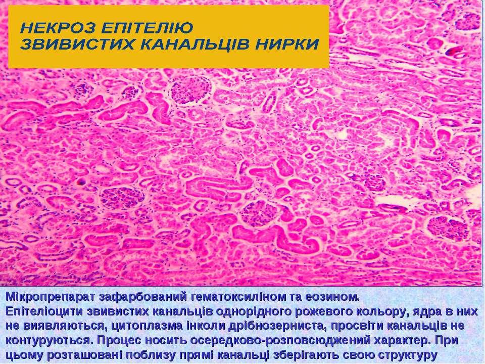 Мікропрепарат зафарбований гематоксиліном та еозином. Епітеліоцити звивистих ...