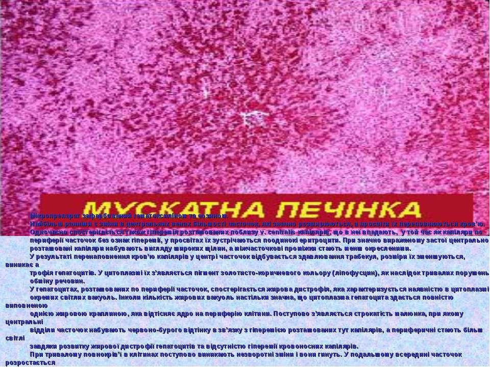 Мікропрепарат зафарбований гематоксиліном та еозином. Найбільш ранніми є змін...
