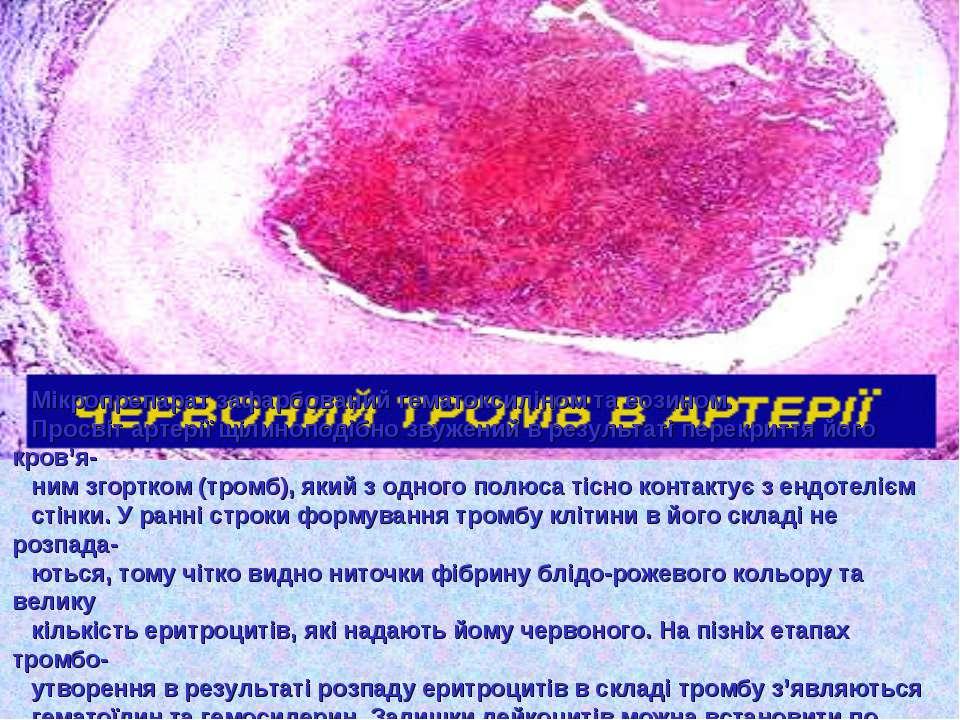 Мікропрепарат зафарбований гематоксиліном та еозином. Просвіт артерії щілиноп...