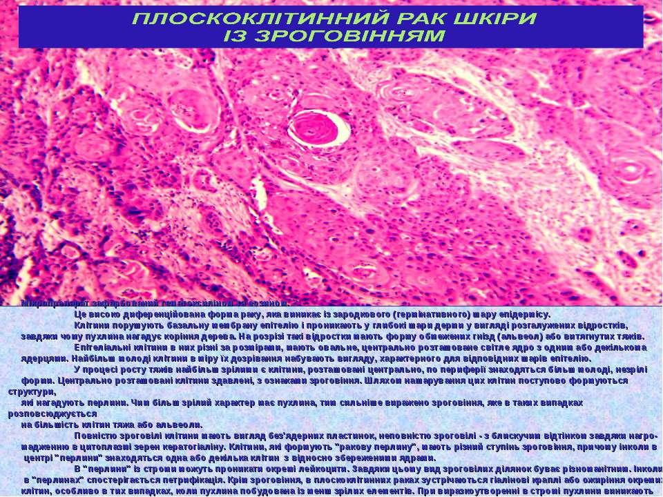 Мікропрепарат зафарбований гематоксиліном та еозином. Це високо диференційова...