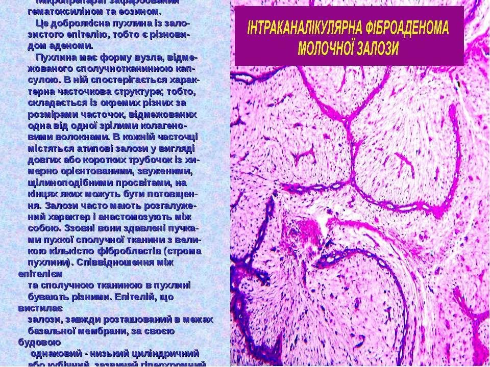 Мікропрепарат зафарбований гематоксиліном та еозином. Це доброякісна пухлина ...