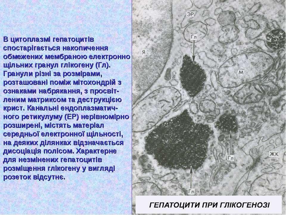 В цитоплазмі гепатоцитів спостарігається накопичення обмежених мембраною елек...