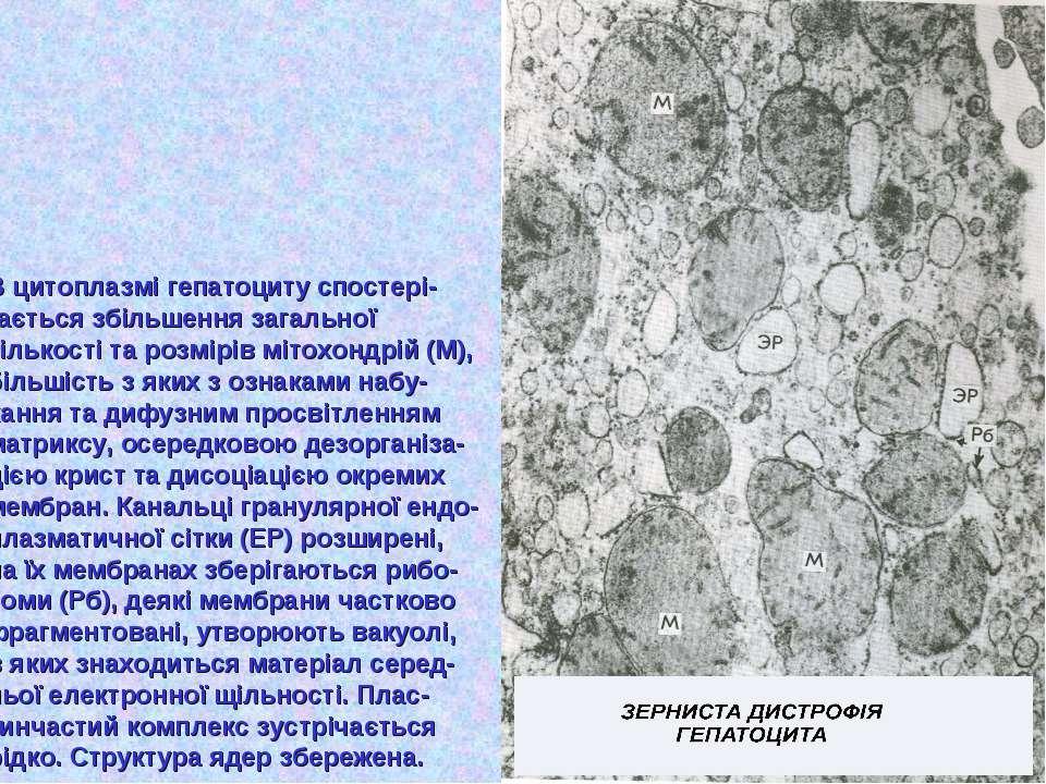 В цитоплазмі гепатоциту спостері- гається збільшення загальної кількості та р...