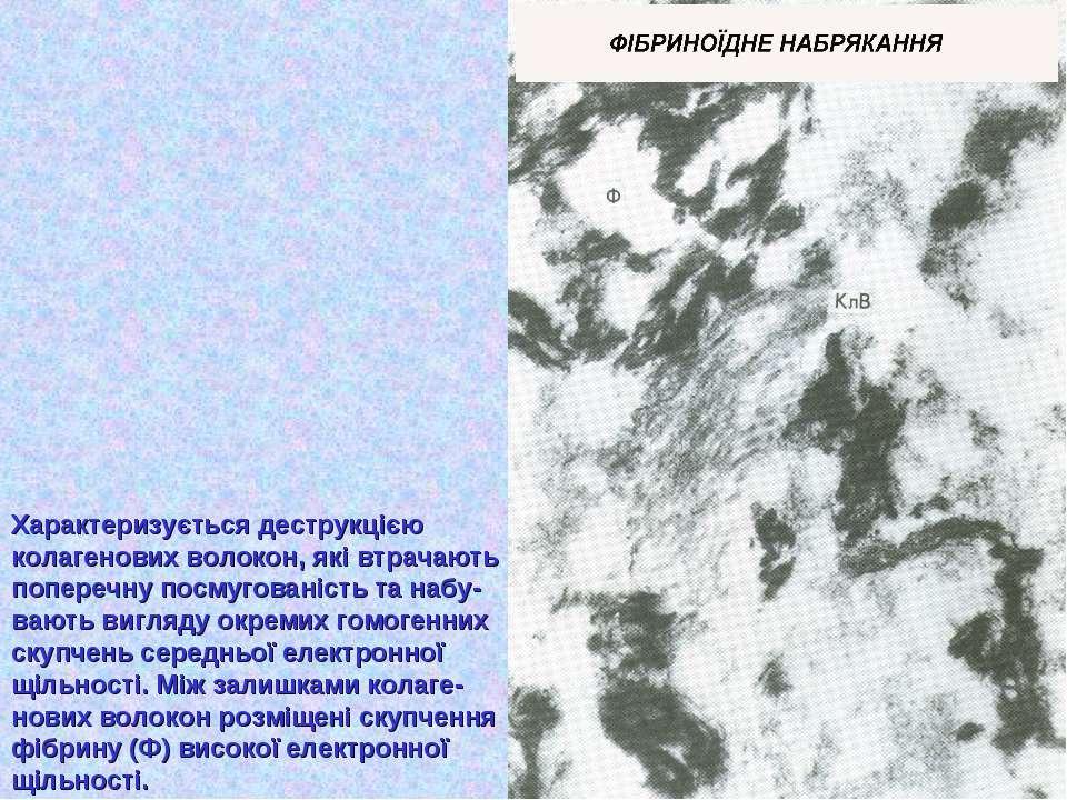 Характеризується деструкцією колагенових волокон, які втрачають поперечну пос...