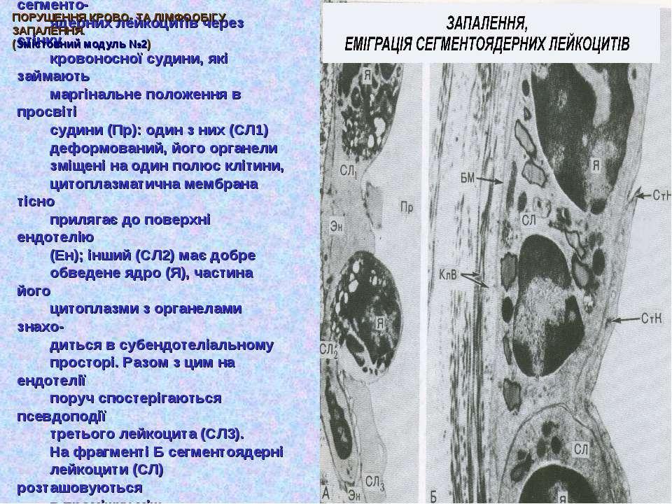 На електронограмі (фрагмент А) показані етапи еміграції сегменто- ядерних лей...