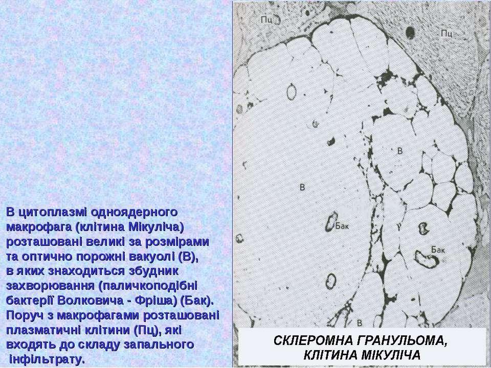 В цитоплазмі одноядерного макрофага (клітина Мікуліча) розташовані великі за ...