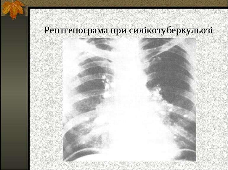 Рентгенограма при силікотуберкульозі