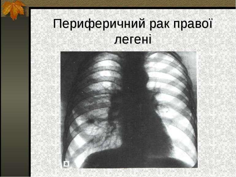 Периферичний рак правої легені