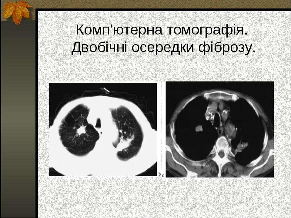 Комп'ютерна томографія. Двобічні осередки фіброзу.