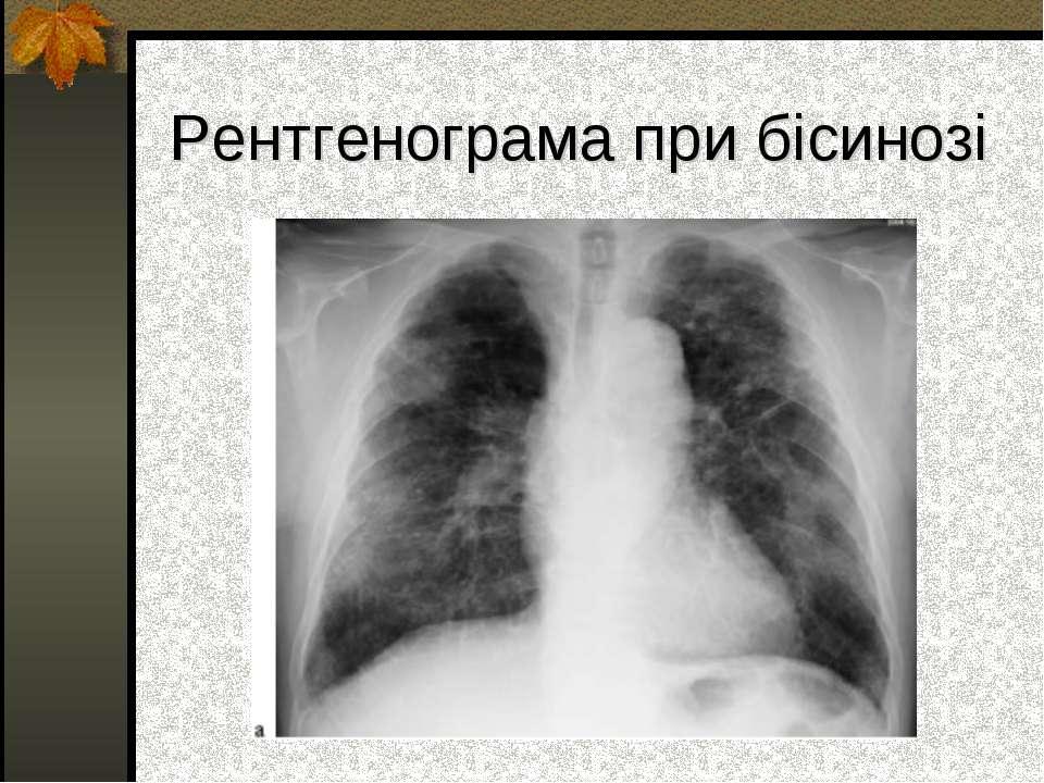 Рентгенограма при бісинозі