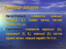 Приклади діагнозу Негоспітальна пневмонія нижньої частки(S9 S10), правої леге...