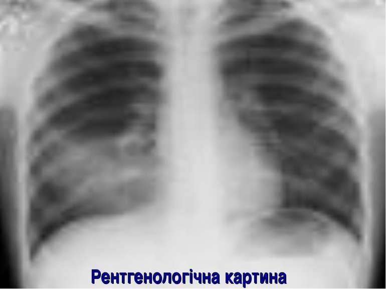 Рентгенологічна картина