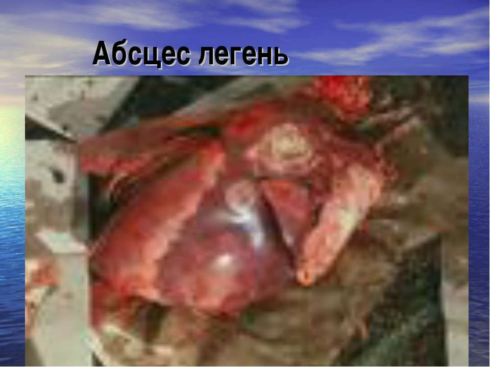 Абсцес легень