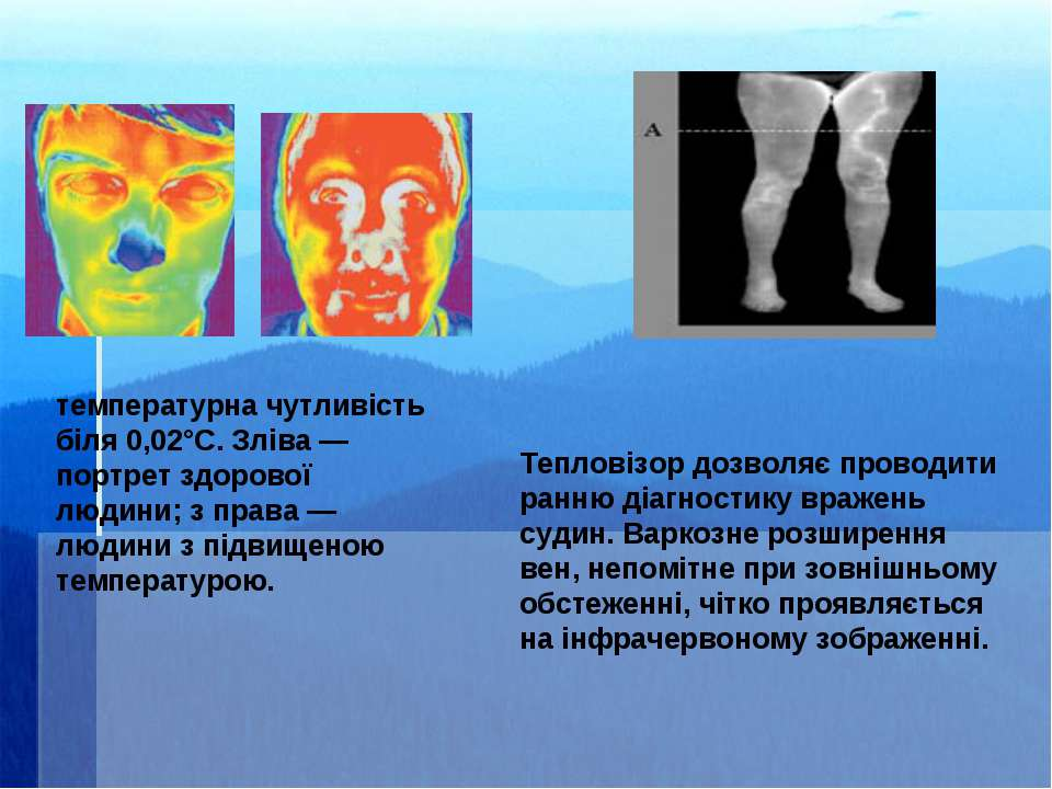 температурна чутливість біля 0,02°С. Зліва— портрет здорової людини; з права...