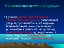 Поняття про пухлинний процес Пухлина (tumor, новоутворення, хвороба Петрова т...
