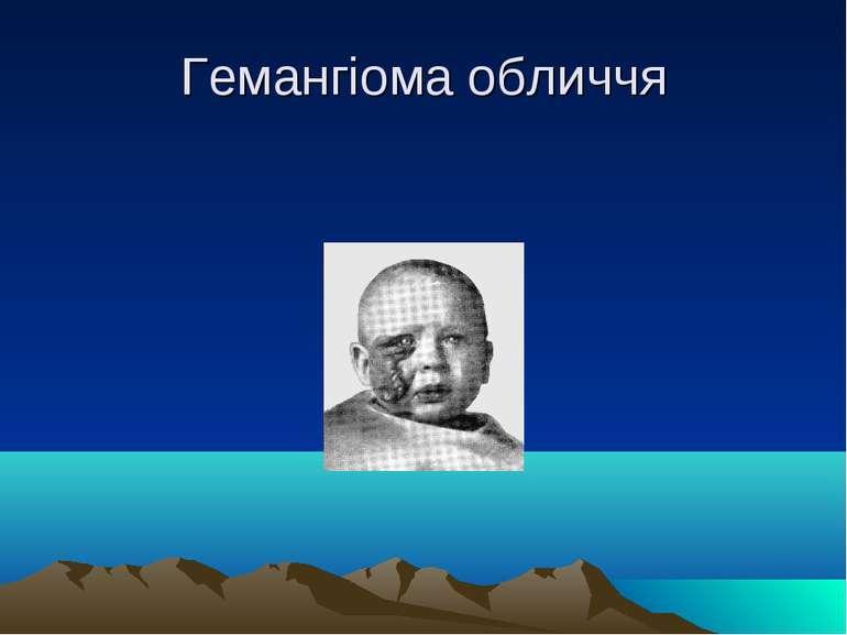 Гемангіома обличчя