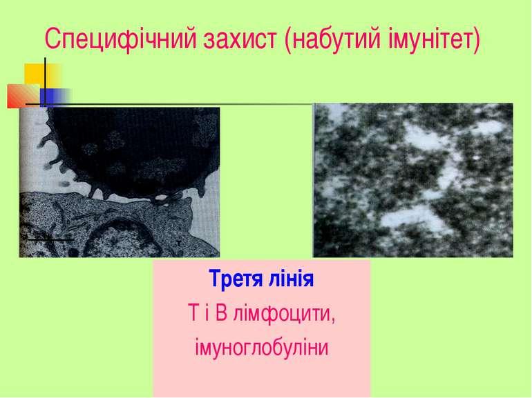 Специфічний захист (набутий імунітет) Третя лінія Т і В лімфоцити, імуноглобу...