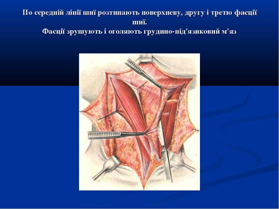 По середній лінії шиї розтинають поверхневу, другу і третю фасції шиї. Фасції...