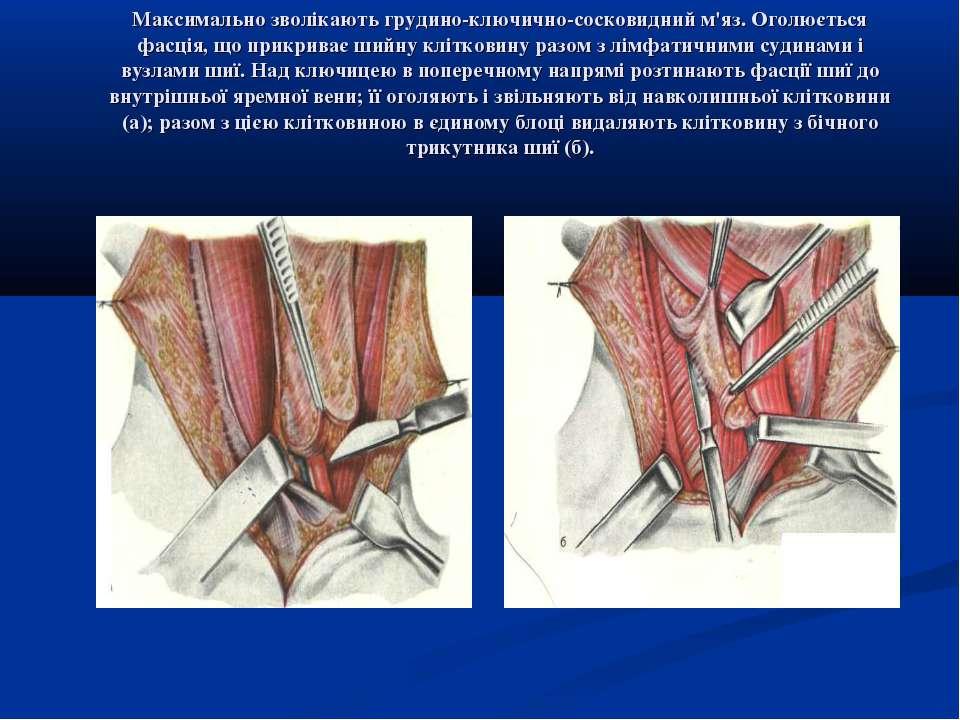 Максимально зволікають грудино-ключично-сосковидний м'яз. Оголюється фасція, ...