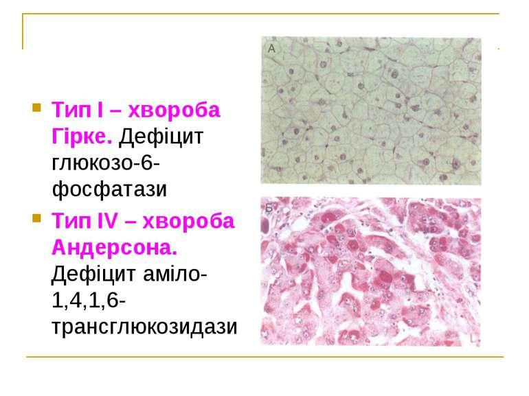 Тип І – хвороба Гірке. Дефіцит глюкозо-6-фосфатази Тип ІV – хвороба Андерсона...