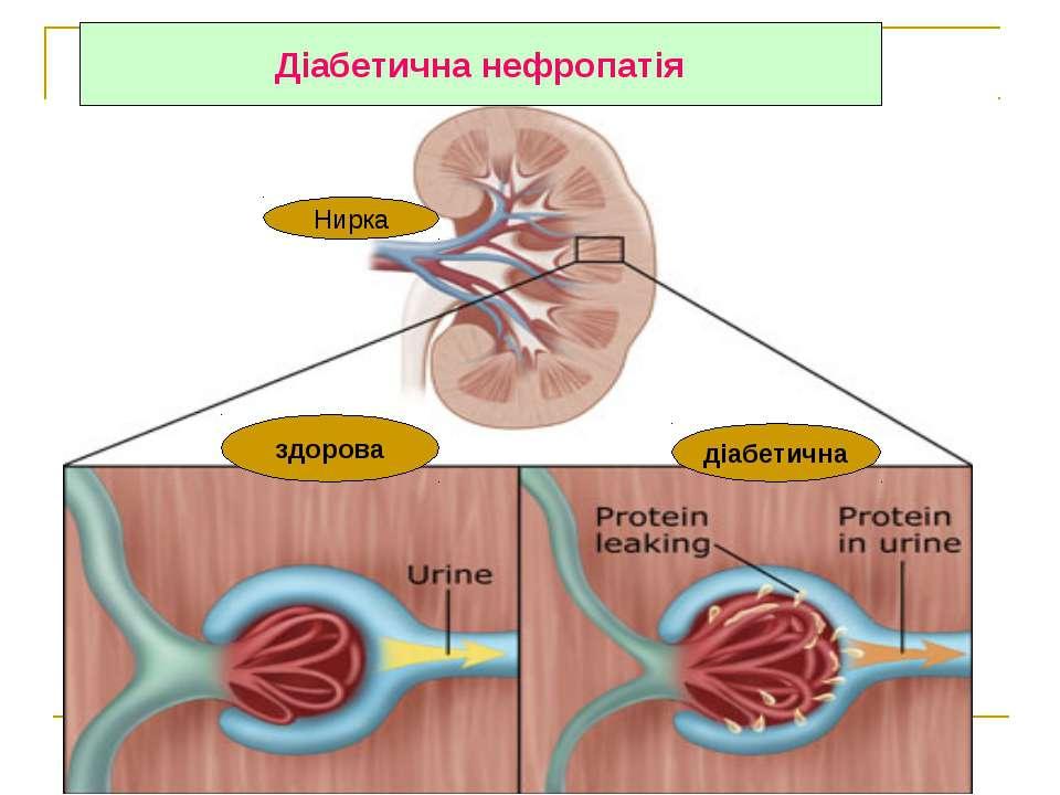 Діабетична нефропатія Нирка здорова діабетична