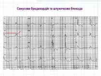 Синусова брадикардія та шлуночкова блокада