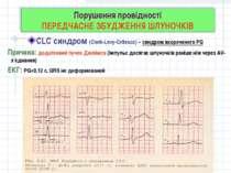 Порушення провідності ПЕРЕДЧАСНЕ ЗБУДЖЕННЯ ШЛУНОЧКІВ CLC синдром (Clerk-Levy-...