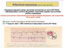 Фібриляція передсердь (миготлива аритмія) Порушення серцевого ритму, при яком...