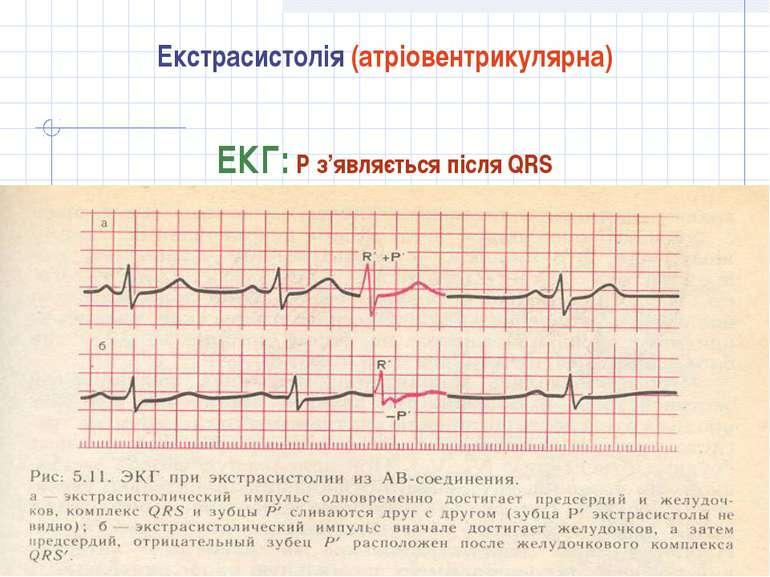 Екстрасистолія (атріовентрикулярна) ЕКГ: Р з'являється після QRS