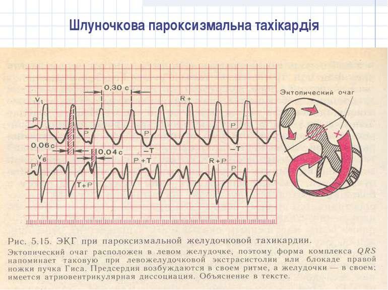 Шлуночкова пароксизмальна тахікардія
