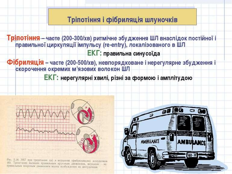 Тріпотіння і фібриляція шлуночків Тріпотіння – часте (200-300/хв) ритмічне зб...