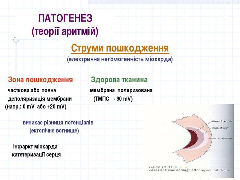 ПАТОГЕНЕЗ (теорії аритмій) Струми пошкодження (електрична негомогенність міок...