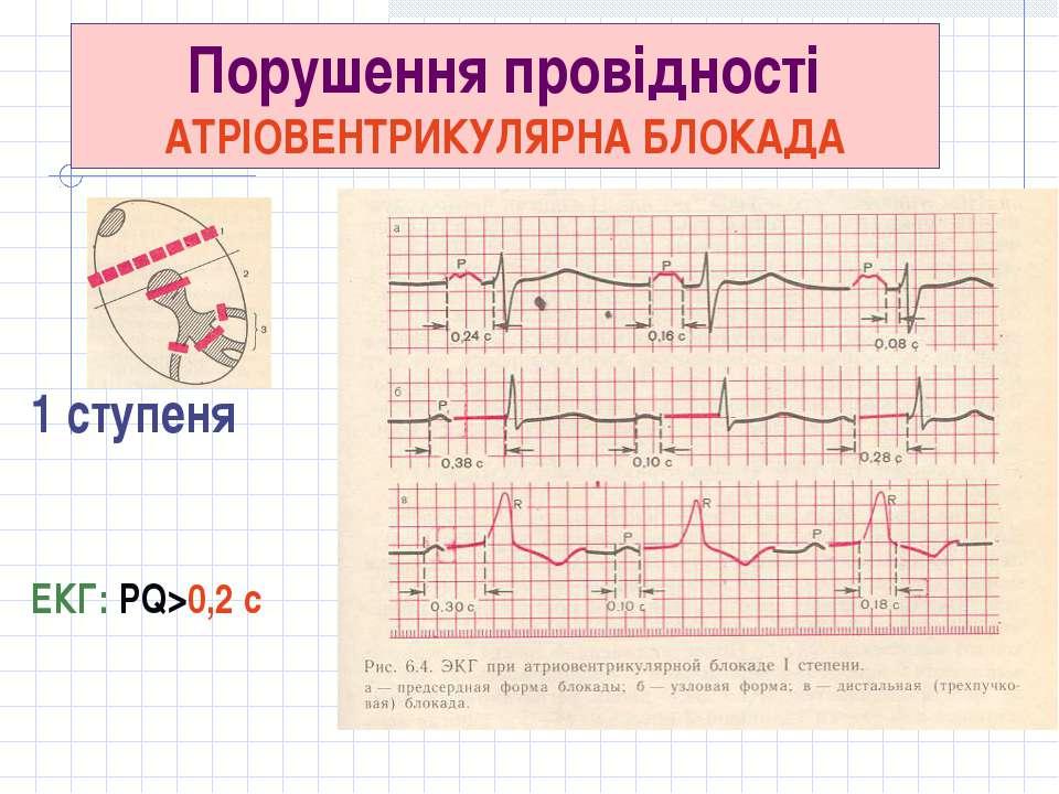 Порушення провідності АТРІОВЕНТРИКУЛЯРНА БЛОКАДА 1 ступеня ЕКГ: PQ>0,2 с