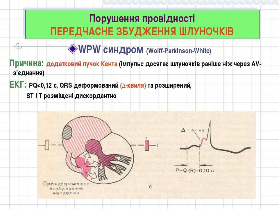 Порушення провідності ПЕРЕДЧАСНЕ ЗБУДЖЕННЯ ШЛУНОЧКІВ WPW синдром (Wolff-Parki...